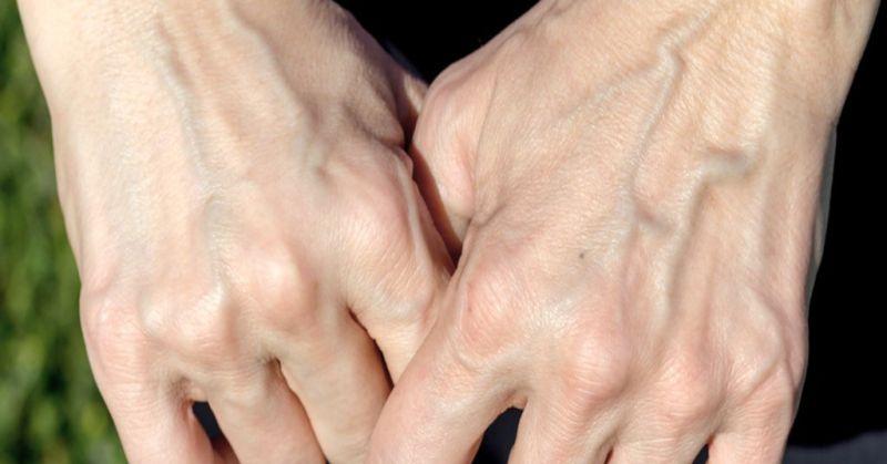 pembuluh darah terlihat jelas di tangan